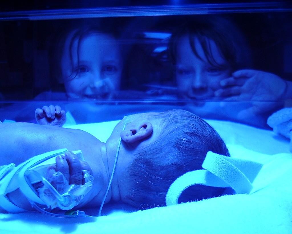 bebé-prematuro